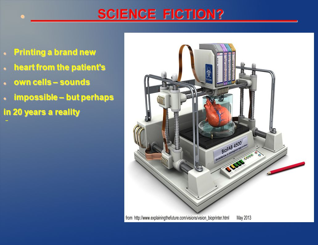 _________SCIENCE FICTION?__________ _________SCIENCE FICTION?__________ Printing a brand new Printing a brand new heart from the patient s heart from the patient s own cells – sounds own cells – sounds impossible – but perhaps impossible – but perhaps in 20 years a reality -