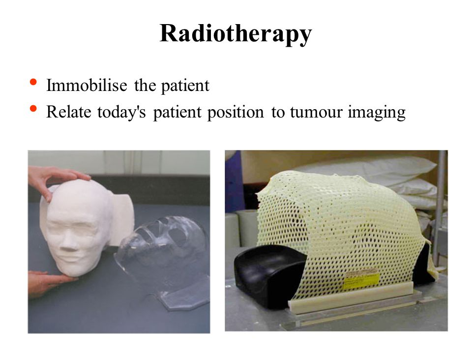 Radiotherapy Immobilise the patient Relate today s patient position to tumour imaging