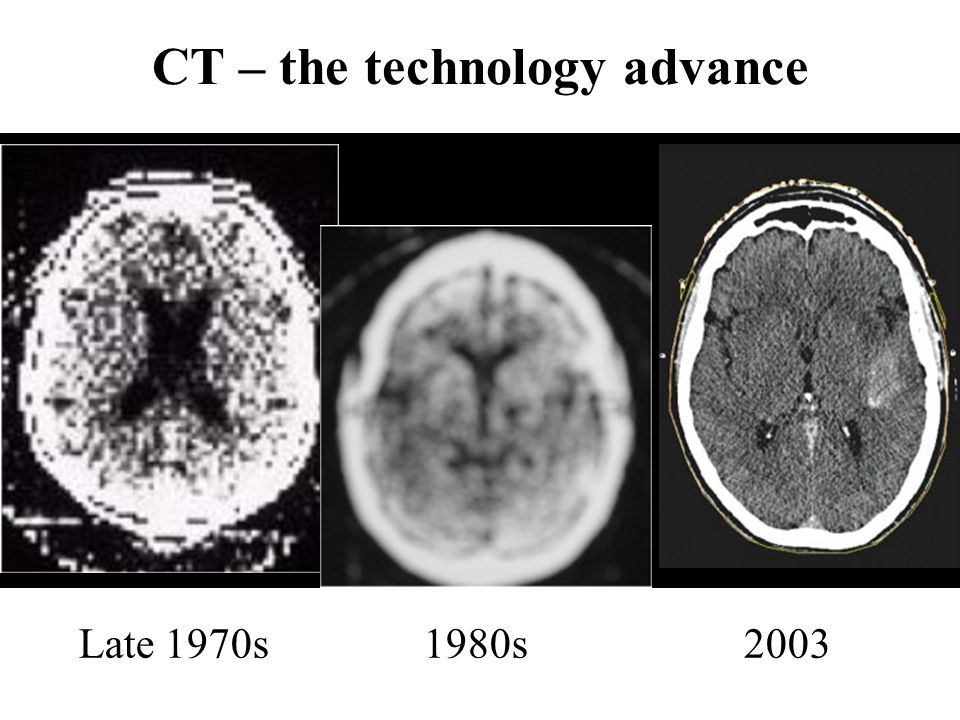 CT – the technology advance Late 1970s 1980s 2003