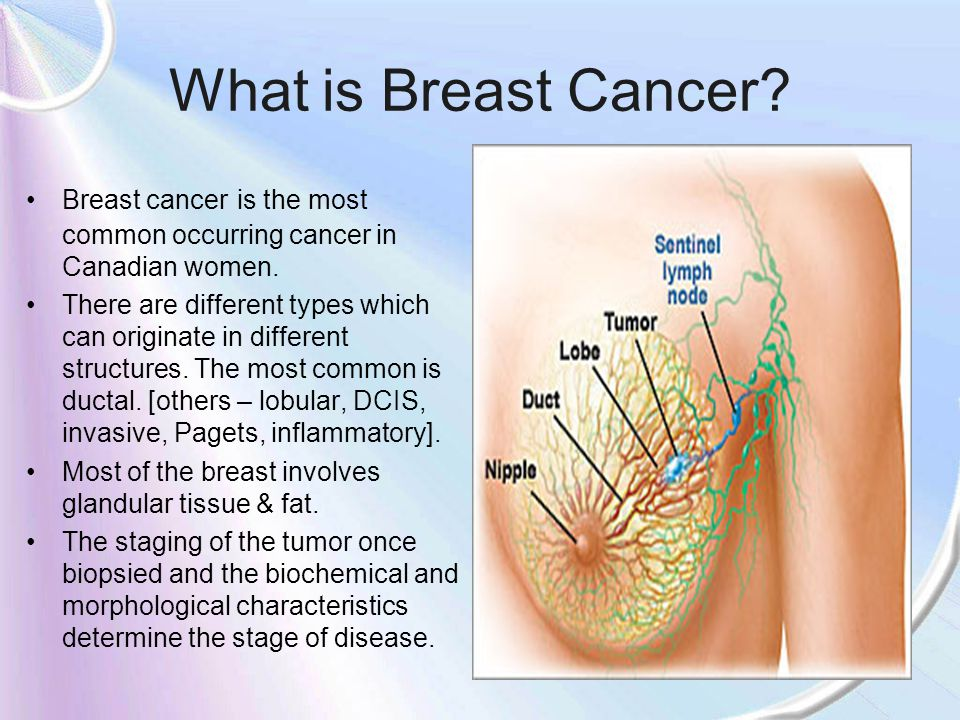 Canadian Statistics In 2006, an estimated 22,200 women will be diagnosed with breast cancer and 5,300 will die of it.