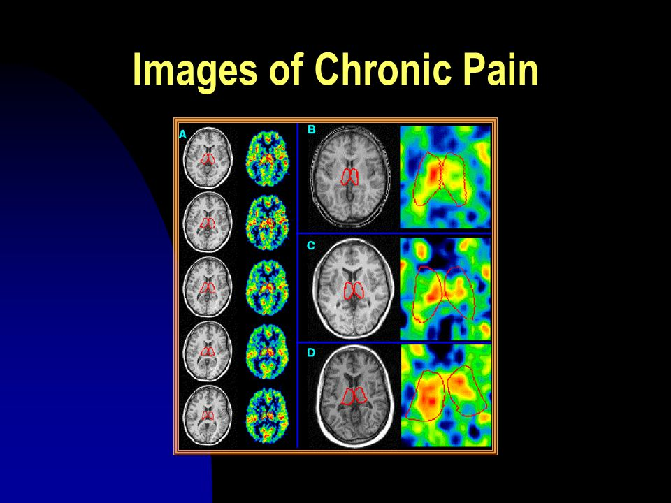 Images of Chronic Pain