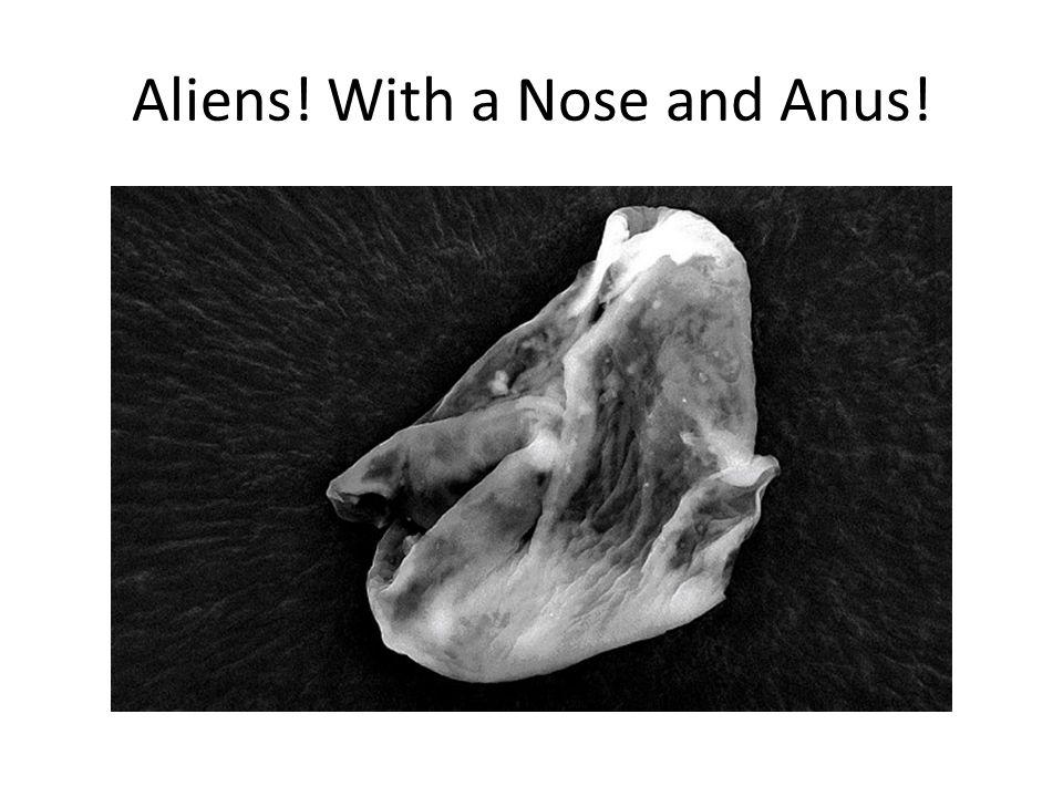 Aliens! With a Nose and Anus!
