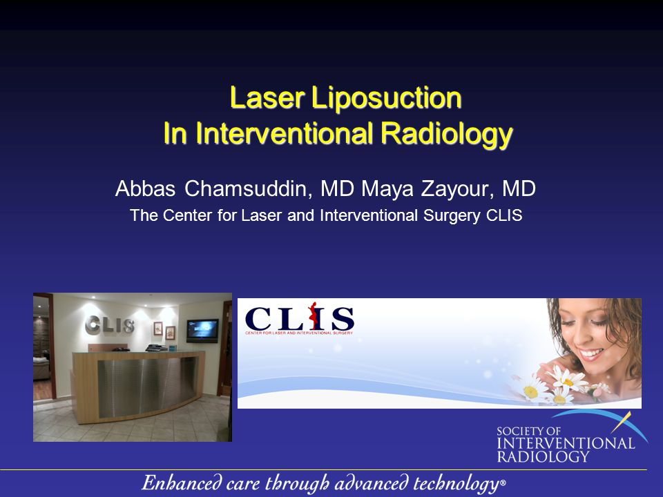 Laser Liposuction In Interventional Radiology Laser Liposuction In Interventional Radiology Abbas Chamsuddin, MD Maya Zayour, MD The Center for Laser