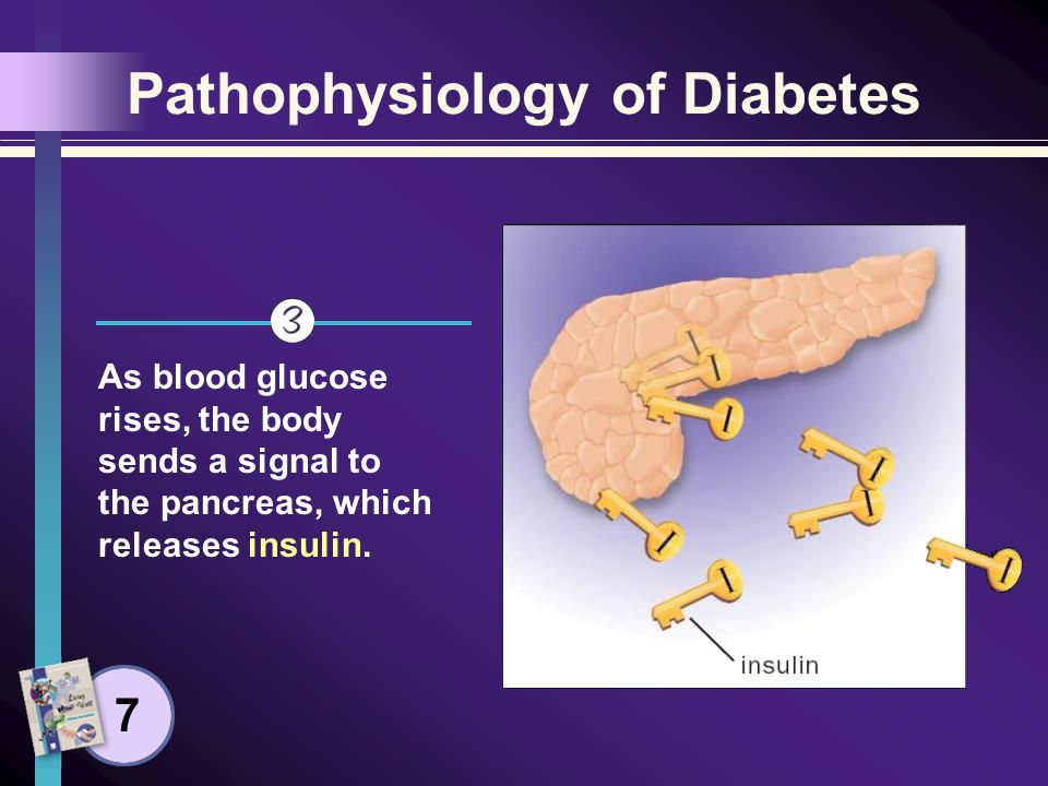 Pathophysiology of Diabetes Acting as a key, insulin binds to a place on the cell wall (an insulin receptor), unlocking the cell so glucose can pass into it.