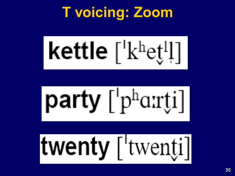 35 T voicing: Zoom