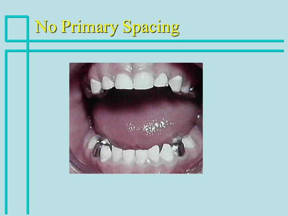 No Primary Spacing