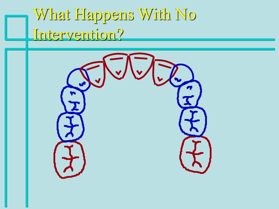 What Happens With No Intervention?