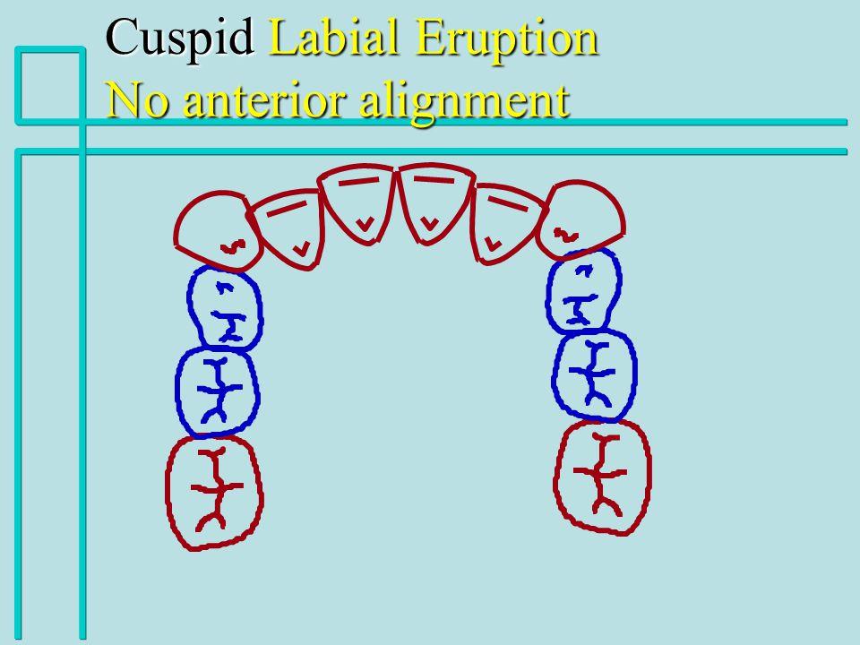 Cuspid Labial Eruption No anterior alignment
