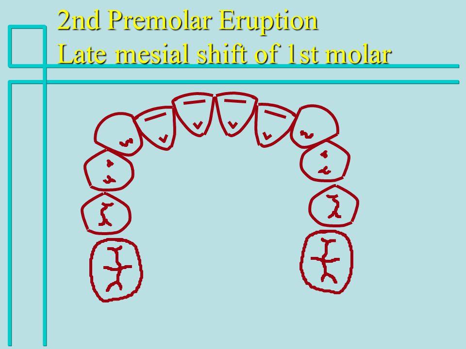 2nd Premolar Eruption Late mesial shift of 1st molar