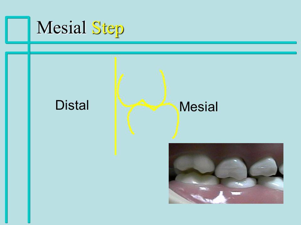 Distal Mesial Mesial Step