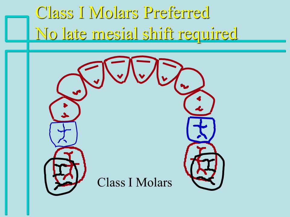 Class I Molars Class I Molars Preferred No late mesial shift required