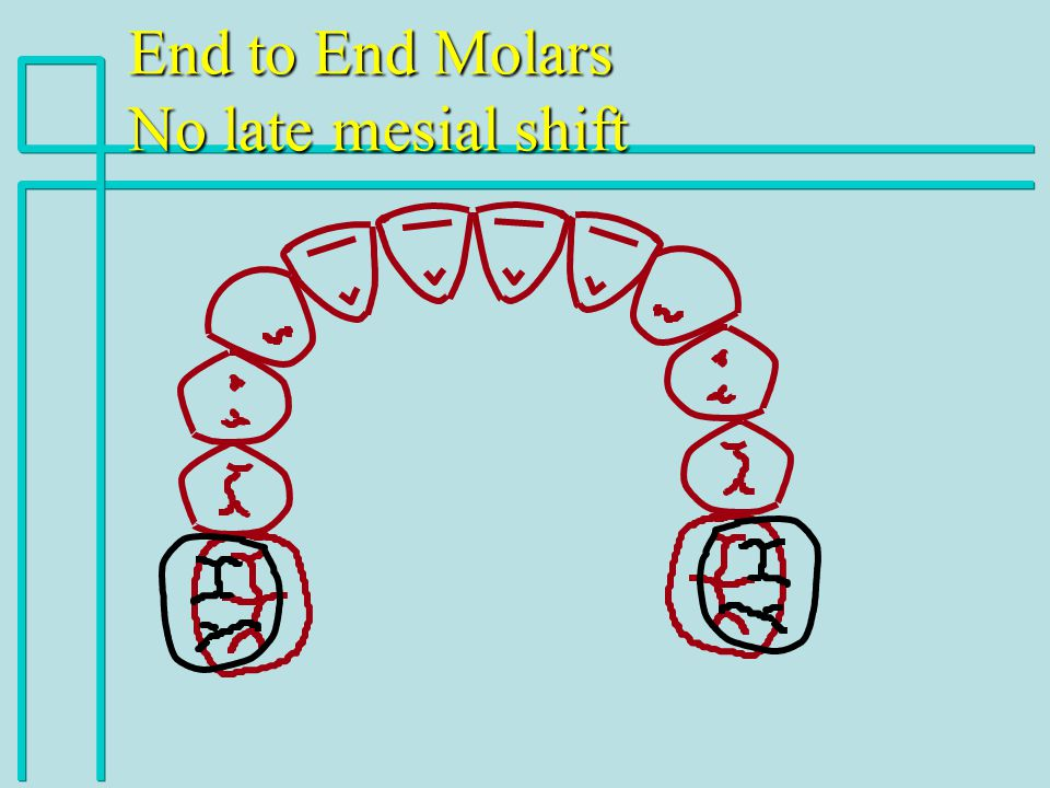 End to End Molars No late mesial shift