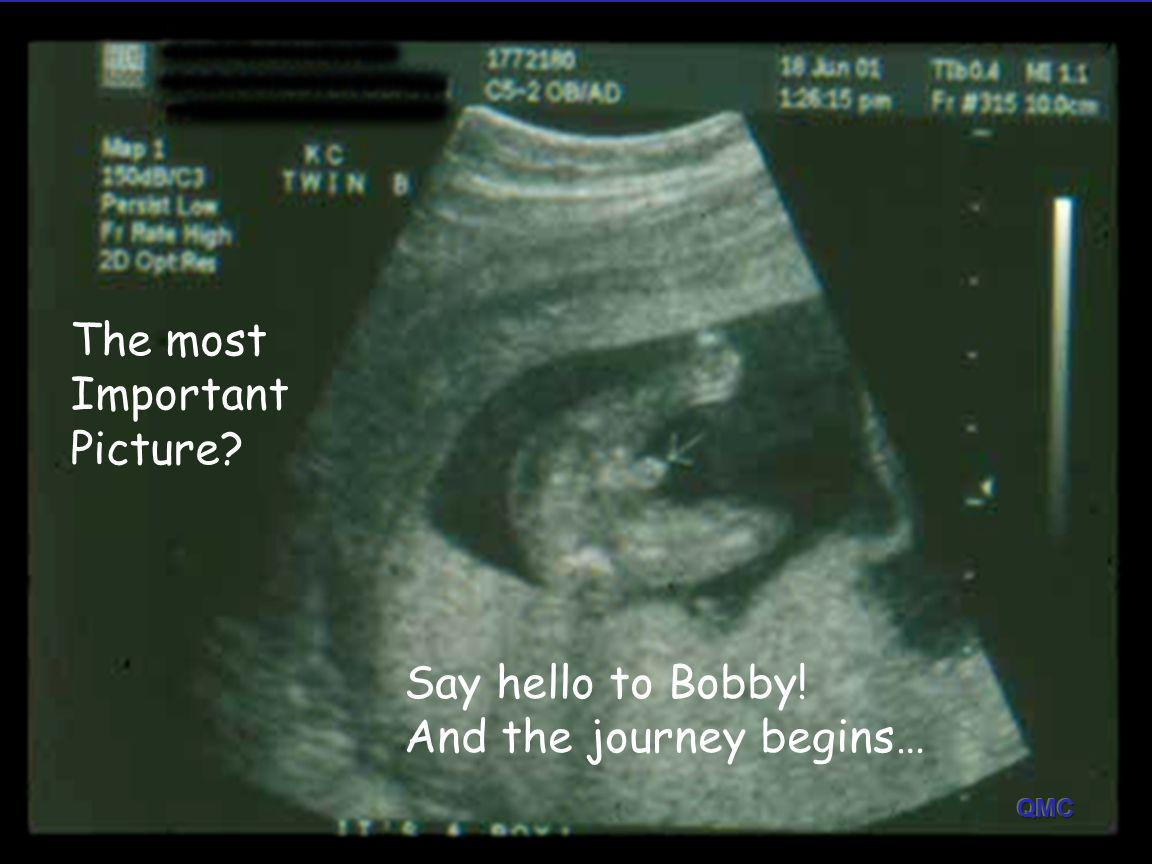 The most Important Picture? Say hello to Bobby! And the journey begins…