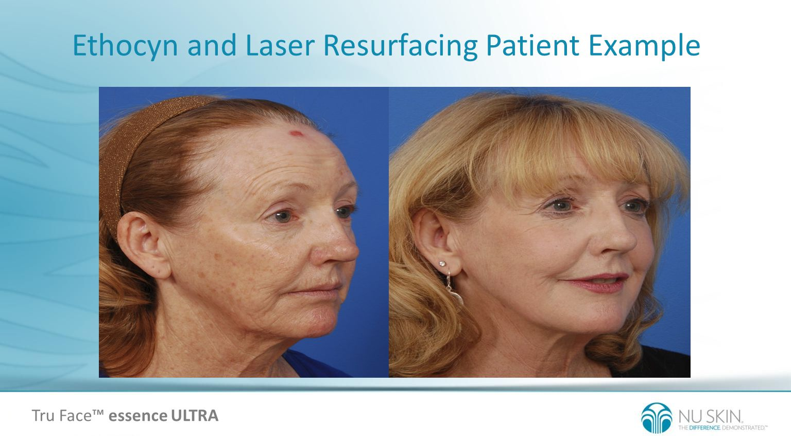 Ethocyn and Laser Resurfacing Patient Example Tru Face essence ULTRA