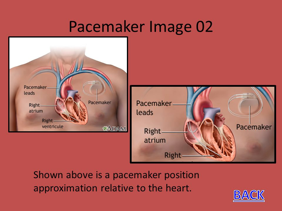 Pacemaker Image 02 Shown above is a pacemaker position approximation relative to the heart.