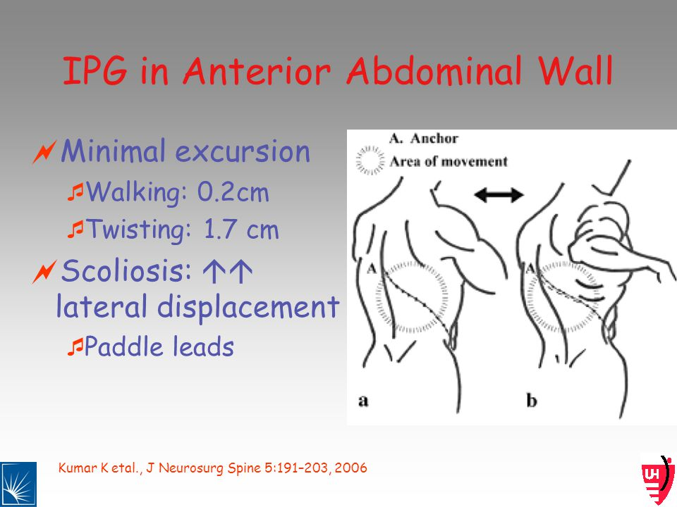 Kumar K etal., J Neurosurg Spine 5:191–203, 2006 IPG in Anterior Abdominal Wall Minimal excursion Walking: 0.2cm Twisting: 1.7 cm Scoliosis: lateral displacement Paddle leads