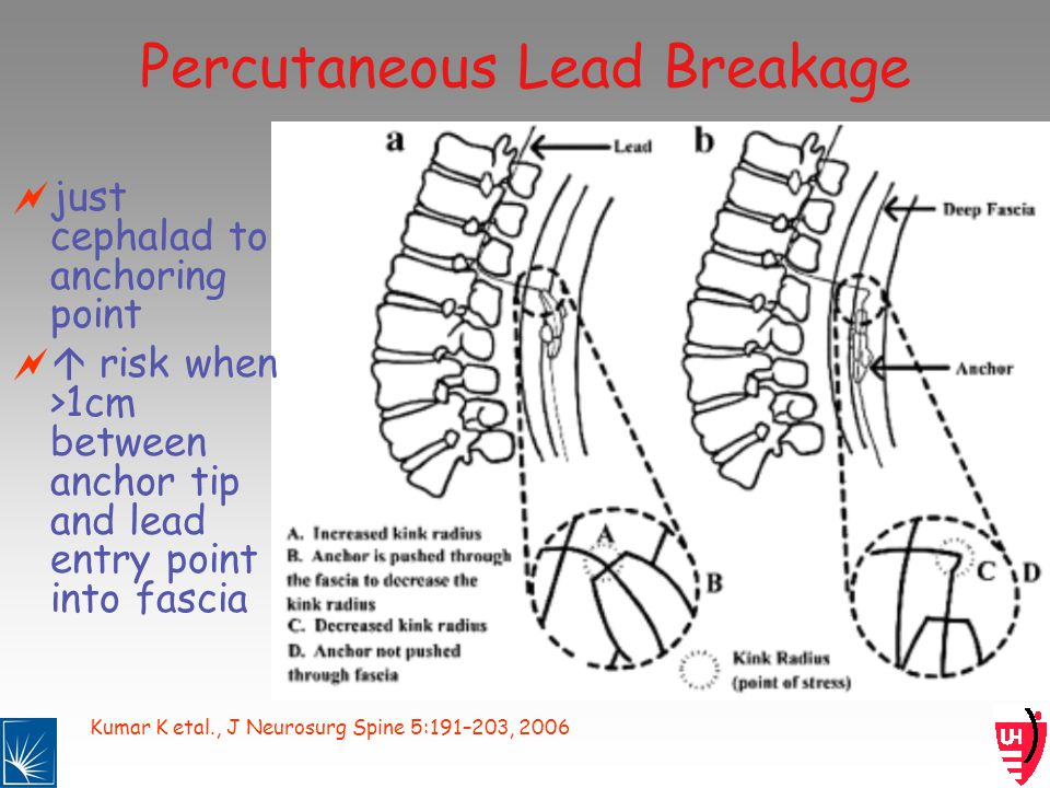Kumar K etal., J Neurosurg Spine 5:191–203, 2006 Percutaneous Lead Breakage just cephalad to anchoring point risk when >1cm between anchor tip and lead entry point into fascia