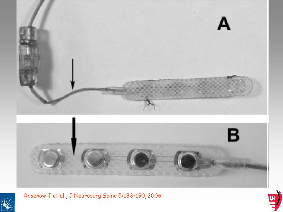 Rosenow J et al., J Neurosurg Spine 5:183–190, 2006