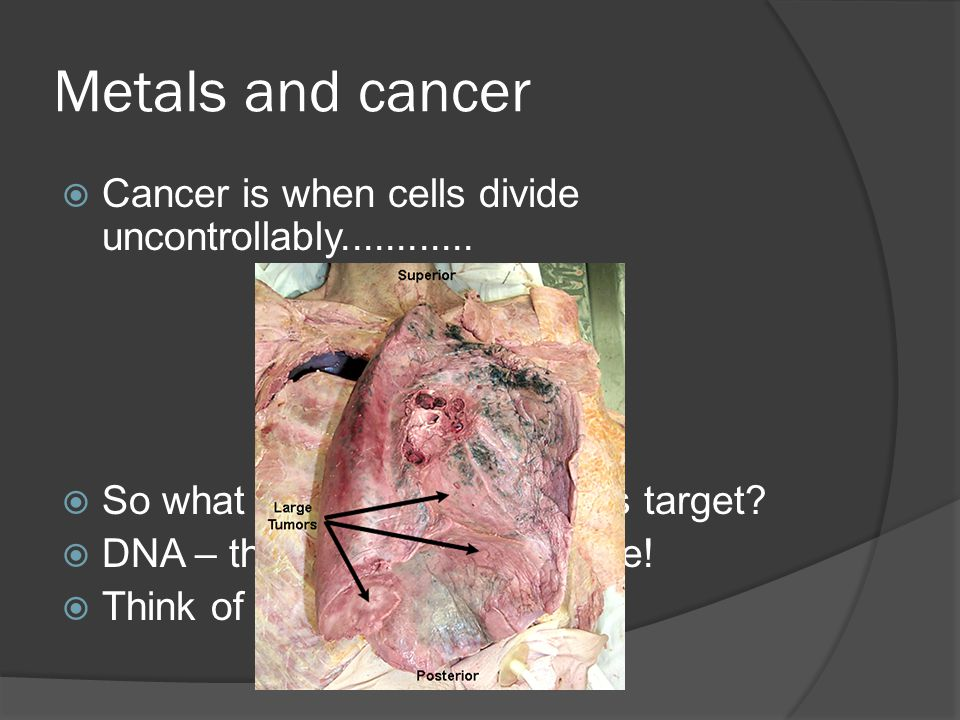 Metals and cancer Cancer is when cells divide uncontrollably............ So what do cancer treatments target? DNA – the building block of life! Think
