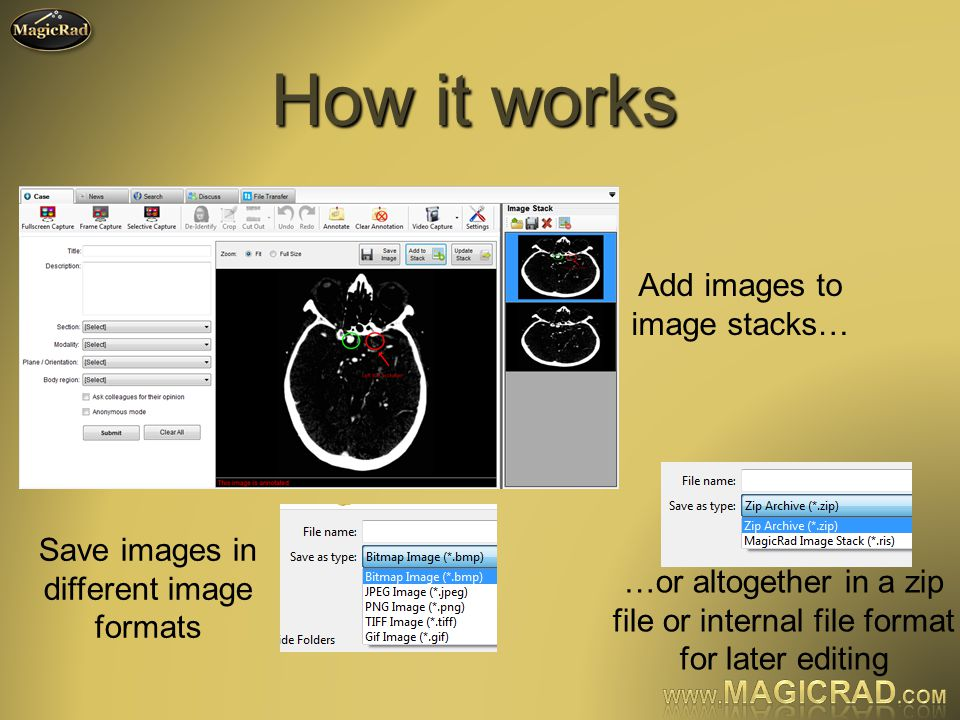 How it works Add images to image stacks… Save images in different image formats …or altogether in a zip file or internal file format for later editing