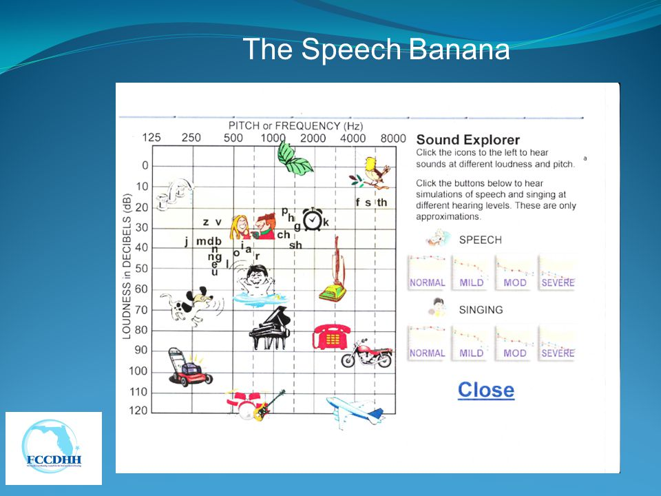 The Speech Banana