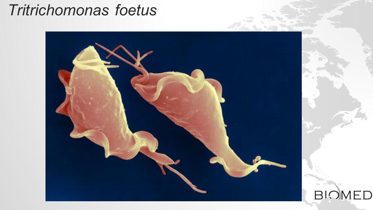 Tritrichomonas foetus