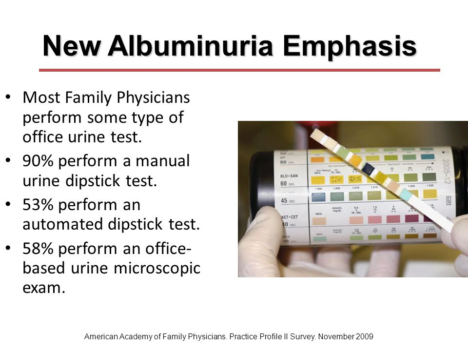 New Albuminuria Emphasis Most Family Physicians perform some type of office urine test. 90% perform a manual urine dipstick test. 53% perform an autom
