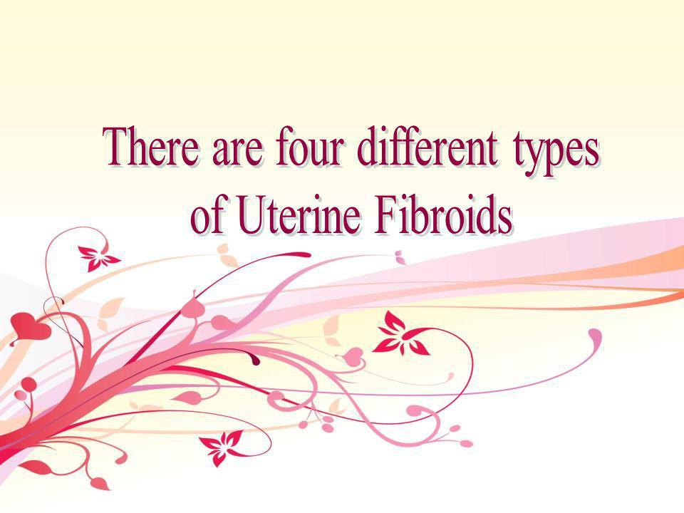 Uterine Fibroid Embolization has been performed for more than 15 years and has been used to treat more than 40,000 women around the world.