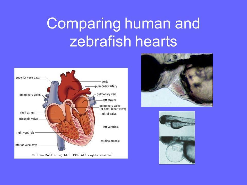 Comparing human and zebrafish hearts