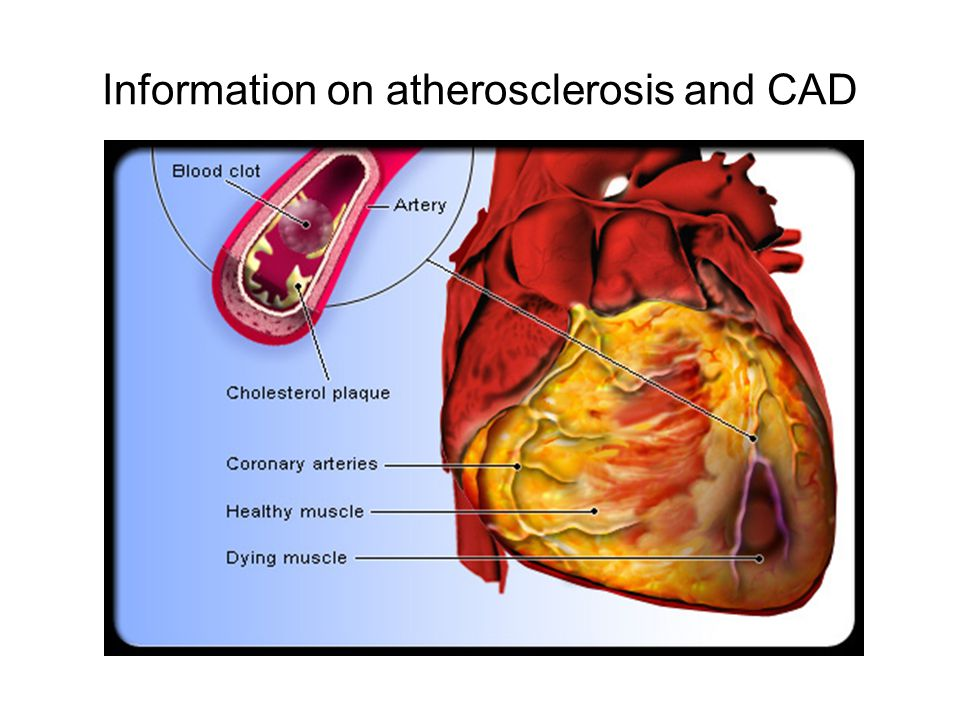 How is Coronary Artery Disease Diagnosed?