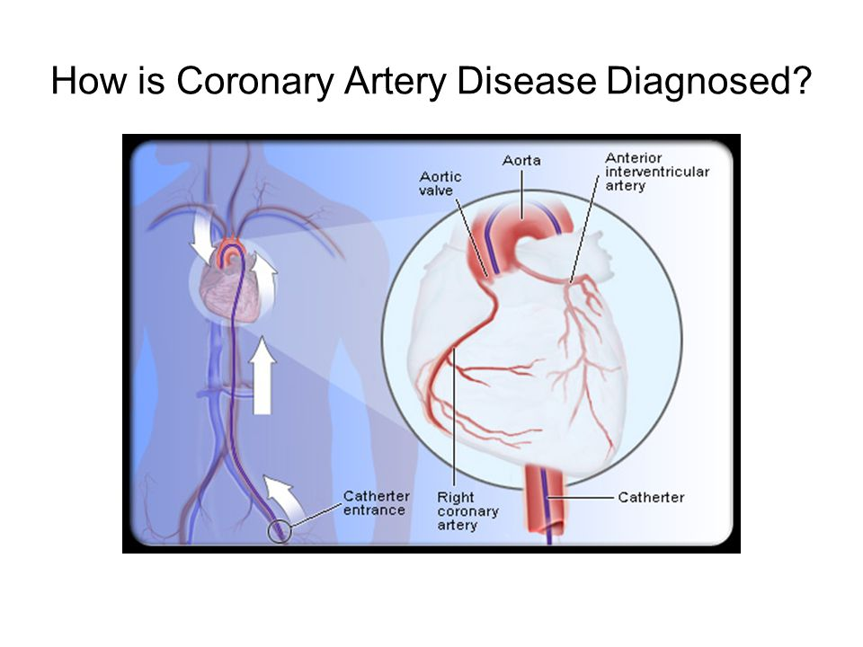 How is Coronary Artery Disease Diagnosed