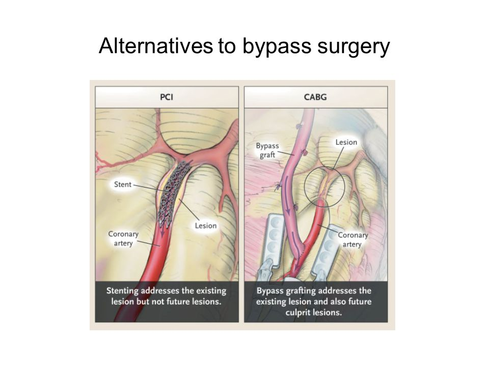 Methods to perform bypass surgery
