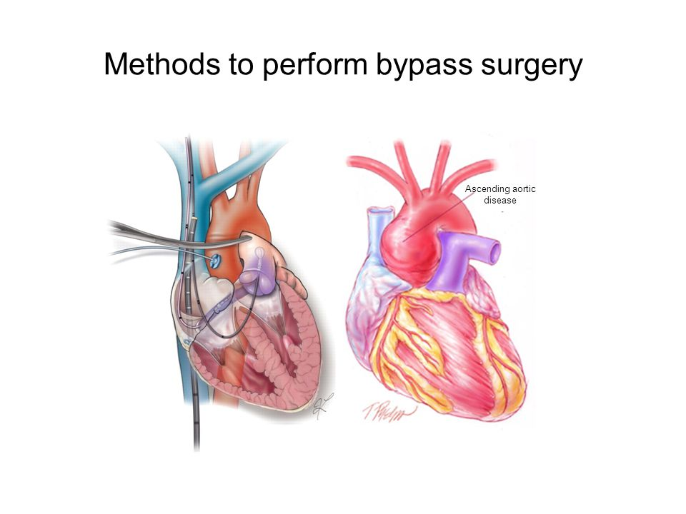 Methods to perform bypass surgery: Beating Heart Surgery