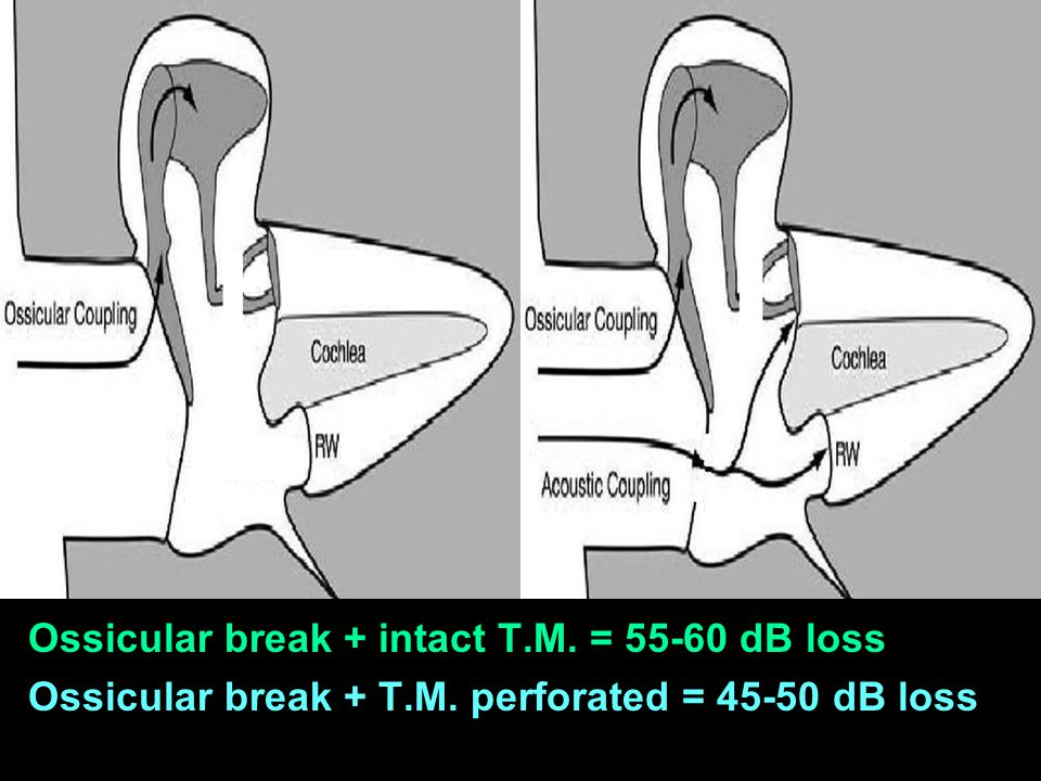 Ossicular break + intact T.M. = 55-60 dB loss Ossicular break + T.M. perforated = 45-50 dB loss