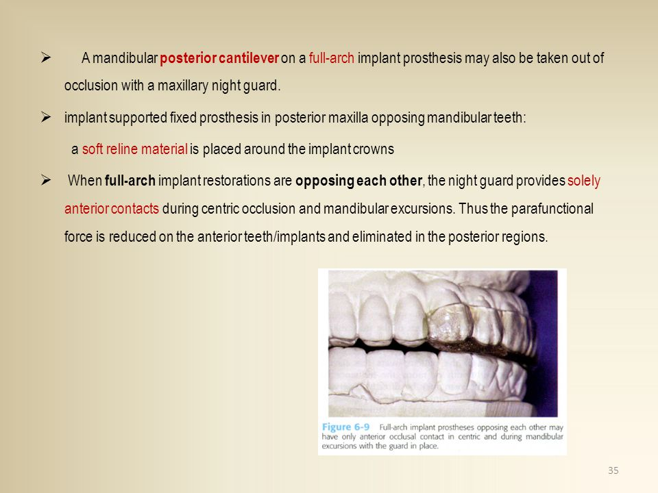 A mandibular posterior cantilever on a full-arch implant prosthesis may also be taken out of occlusion with a maxillary night guard. implant supported