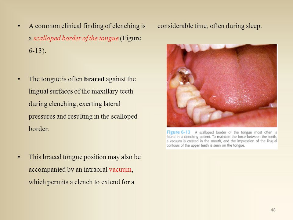 A common clinical finding of clenching is a scalloped border of the tongue (Figure 6-13).