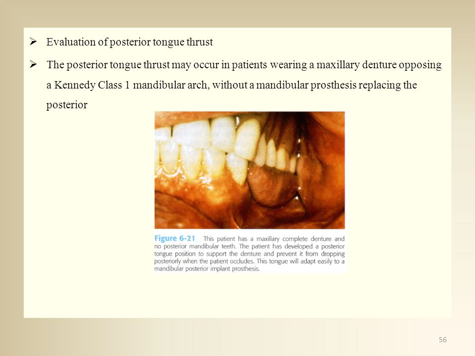 Evaluation of posterior tongue thrust The posterior tongue thrust may occur in patients wearing a maxillary denture opposing a Kennedy Class 1 mandibu