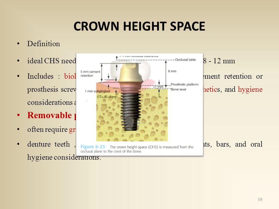 CROWN HEIGHT SPACE Definition ideal CHS needed for a fixed implant prosthesis : 8 - 12 mm Includes : biological width, abutment height for cement retention or prosthesis screw fixation, occlusal material strength, esthetics, and hygiene considerations around the abutment crowns Removable prostheses often require greater than 12 mm denture teeth, acrylic resin base strength, attachments, bars, and oral hygiene considerations.