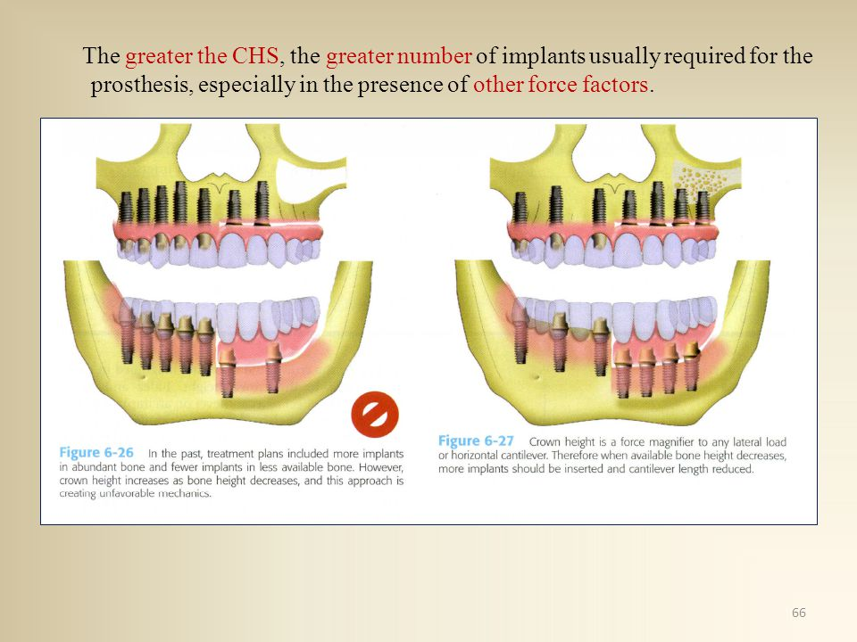 The greater the CHS, the greater number of implants usually required for the prosthesis, especially in the presence of other force factors. 66