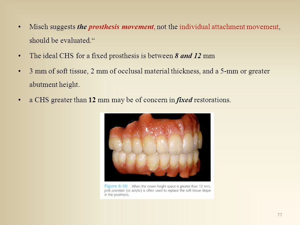 Misch suggests the prosthesis movement, not the individual attachment movement, should be evaluated. The ideal CHS for a fixed prosthesis is between 8