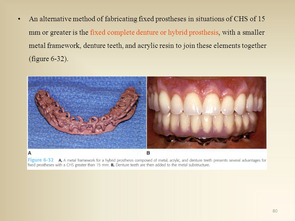 An alternative method of fabricating fixed prostheses in situations of CHS of 15 mm or greater is the fixed complete denture or hybrid prosthesis, wit
