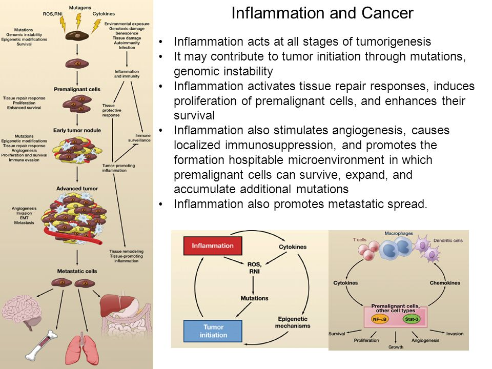 Inflammation and Cancer Inflammation acts at all stages of tumorigenesis It may contribute to tumor initiation through mutations, genomic instability