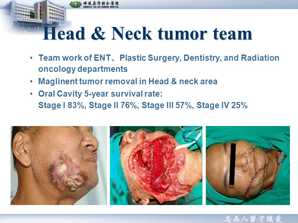 Team work of ENT Plastic Surgery, Dentistry, and Radiation oncology departments Maglinent tumor removal in Head & neck area Oral Cavity 5-year survival rate: Stage I 83%, Stage II 76%, Stage III 57%, Stage IV 25% Head & Neck tumor team
