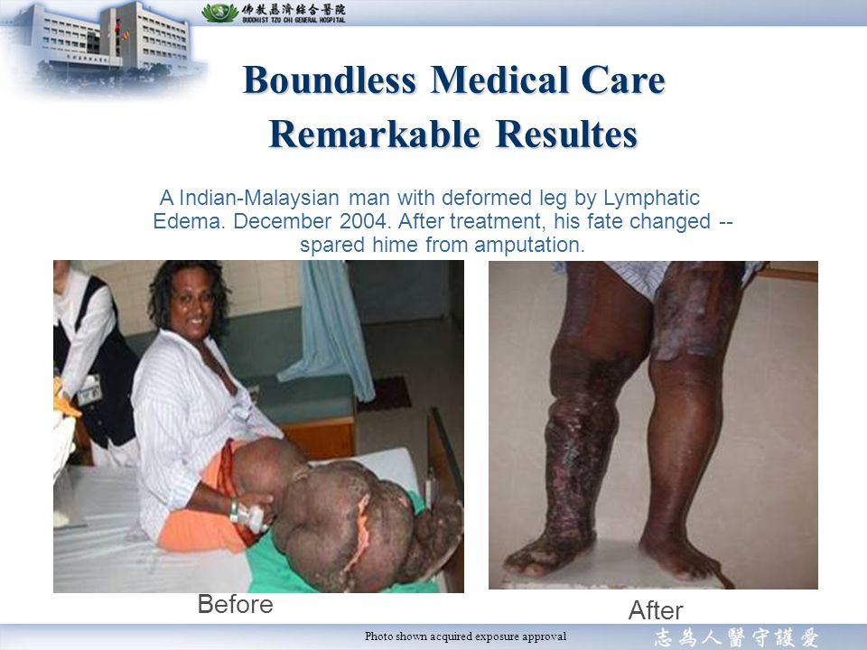 Boundless Medical Care Remarkable Resultes Before After A Indian-Malaysian man with deformed leg by Lymphatic Edema.