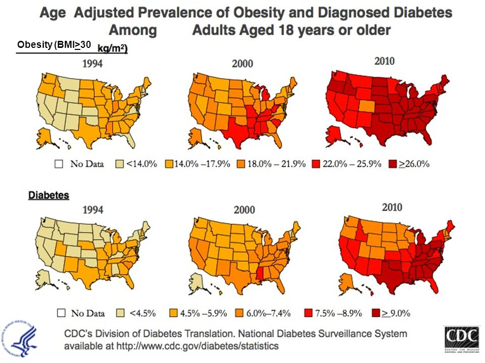 Obesity (BMI>30