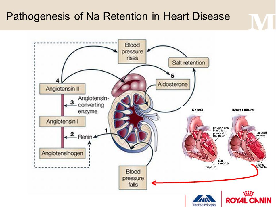 Pathogenesis of Na Retention in Heart Disease