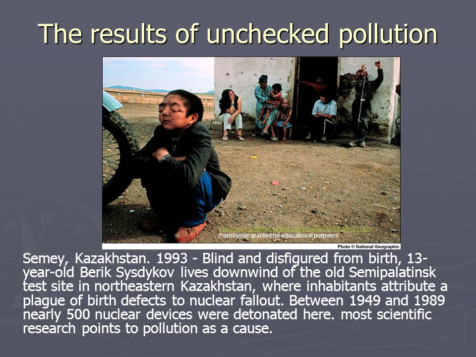 The results of unchecked pollution Semey, Kazakhstan. 1993 - Blind and disfigured from birth, 13- year-old Berik Sysdykov lives downwind of the old Se
