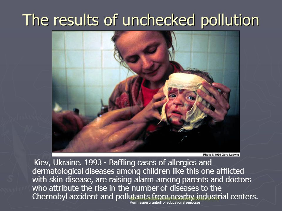 The results of unchecked pollution Kiev, Ukraine. 1993 - Baffling cases of allergies and dermatological diseases among children like this one afflicte