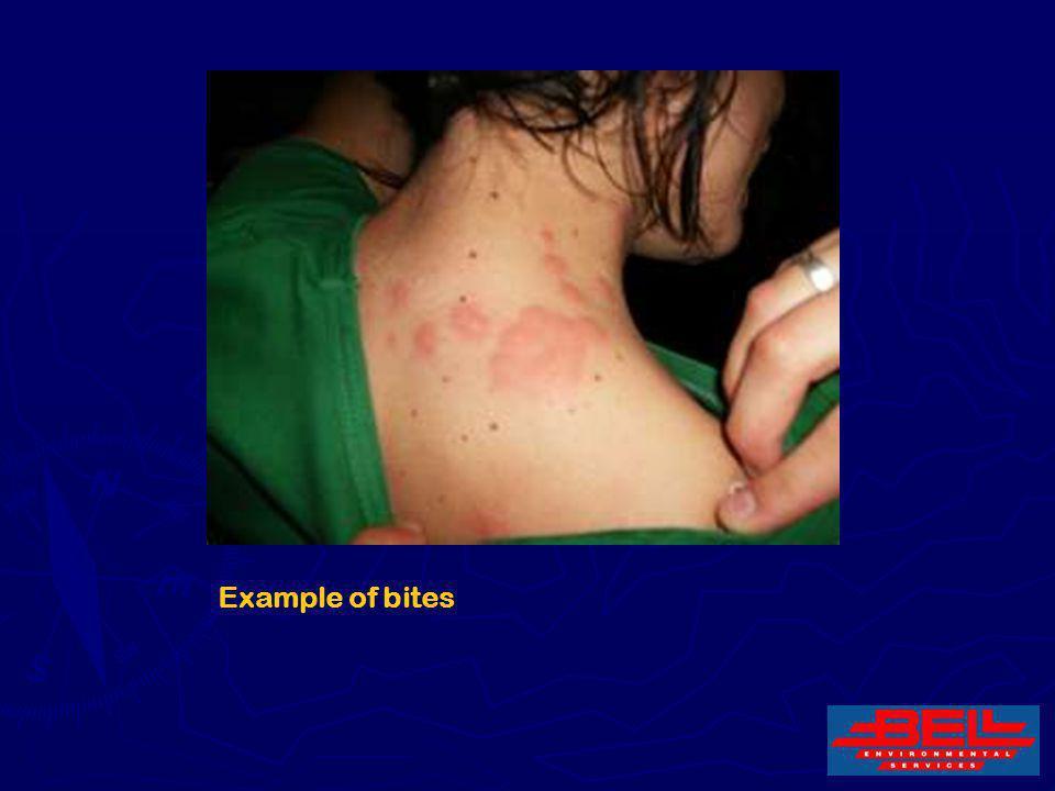 13 Example of bites