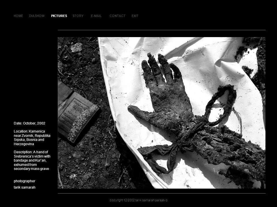HOMEDIASHOWPICTURESE-MAILCONTACTEXIT copyright 12/2002 tarik samarah sarajevo STORY SLAJD 28SLAJD 28 Date: October, 2002 Location: Kamenica near Zvornik, Republika Srpska, Bosnia and Herzegovina Description: A hand of Srebrenicas victim with bandage and Kuran, exhumed from secondary mass grave photographer tarik samarah copyright 12/2002 tarik samarah sarajevo PICTURES